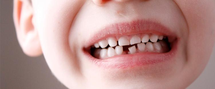 crianças com dentes cariados