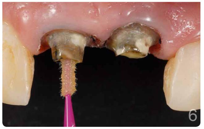Condicionamento ácido (Condac 37, FGM) por 15 segundos e aplicação de adesivo (Ambar, FGM)