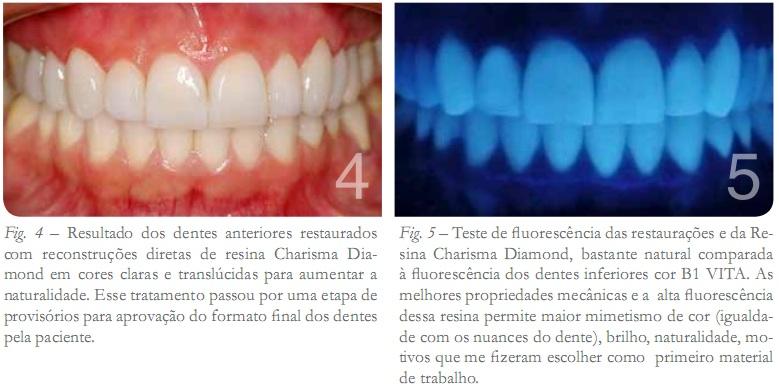 Resultados dos dentes anteriores restaurados com reconstruções diretas de reina Charisma Diamond