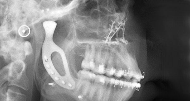 Cirurgiões de Melbourne implantaram a primeira prótese impressa em 3D