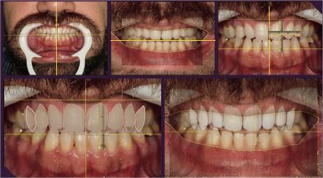 Mordida aberta anterior em que optamos por amenizar com a ortodontia e fechar com os laminados lentes de contato.
