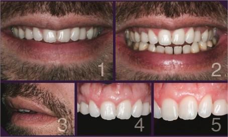 Perfil do paciente em repouso mostrando a necessidade do aumento dos dentes.