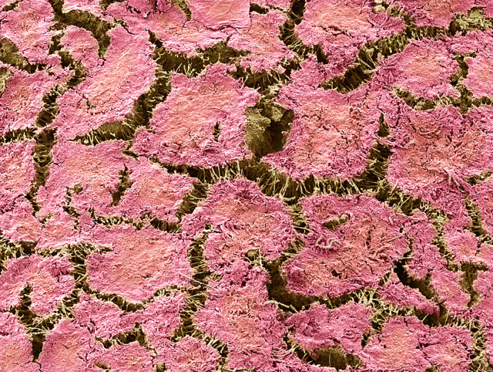 Dental plaque - seen above with a magnification of x400 when printed at 10 centimetres wide - is a biofilm formed by colonising bacteria trying to attach themselves to the surface of a tooth