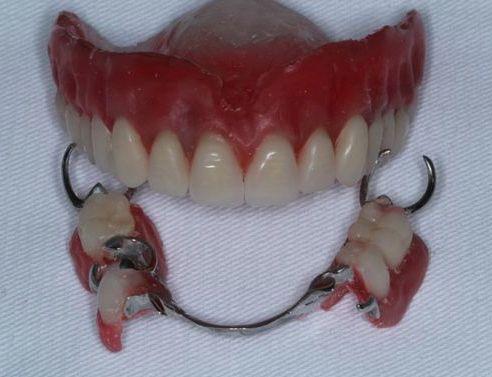 Figura 13- Montagem dos dentes