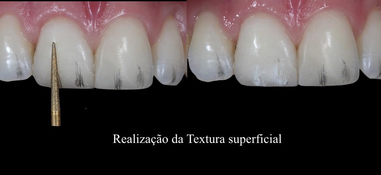 18-Realização da textura superficial