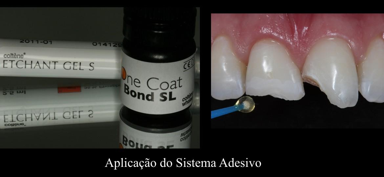 8 - Aplicação do sistema adesivo