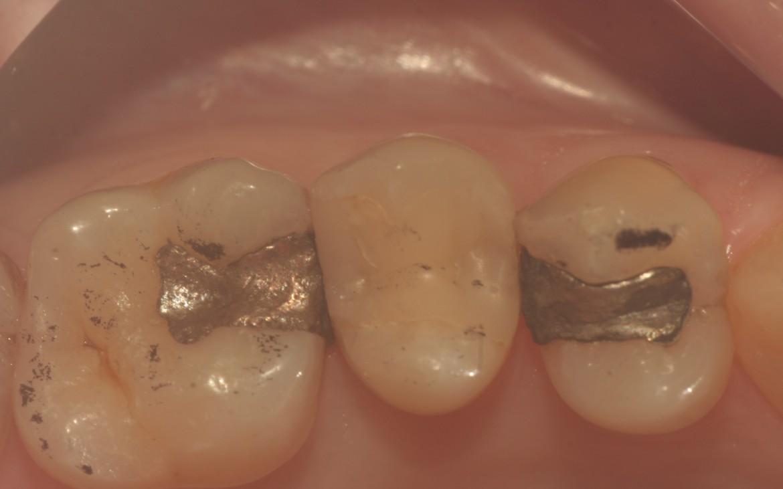 Restaurações em amálgama de classe II nos dentes 26 e 24 que serão substituídas por razões estéticas. Foi selecionada a composta Charisma Diamond, dada às suas excelentes propriedades mecânicas e físicas, especialmente o baixíssimo percentual de contração, o que dinamiza o procedimento restaurador, tornando a técnica sensivelmente mais rápida. Observe a marcação prévia dos contatos oclusais, bem como a presença de uma restauração com resina Charisma realizada há 6 anos no dente 25.