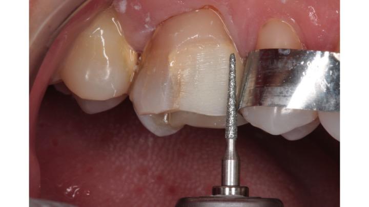 Separação proximal com ponta diamantada #3070(KG Sorensen)