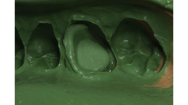 Molde de silicone de adição (Adsil, Coltene)