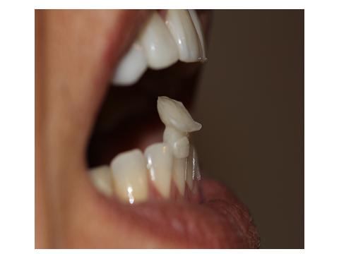 JIG anterior com reposicionamento mandibular.Faceta palatina no dente 11. Bordo incisal no dente 41.