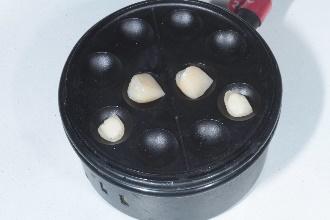 Peças prontas, preparadas para cimentação com resina termo-modificada2