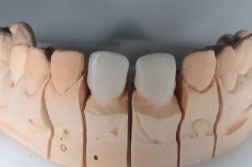 Preparos de laminados nos incisivos laterais1
