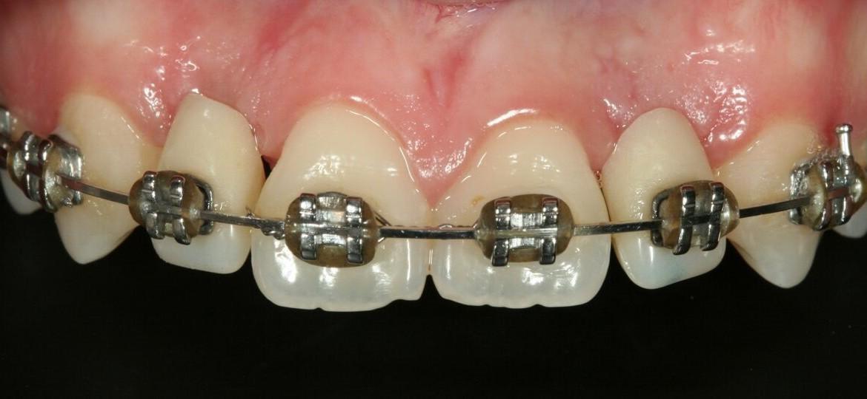 Aspecto inicial com os implantes instalados e provisórias presas no aparelho ortodôntico.