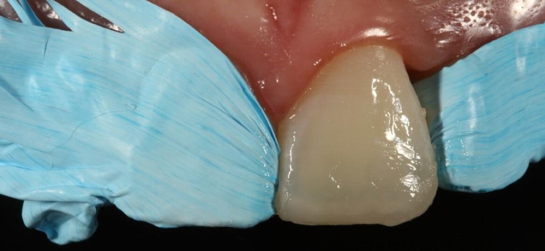 Aplicação de resina de dentina A2 NT Premium para cobrir o ângulo vestíbulo-incisal.
