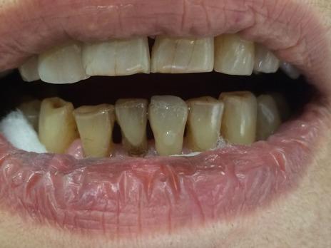 Faceta direta maquiada no dente 31. Prova da correção da cor com pigmentos - cinza e marrom