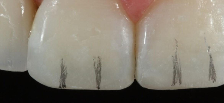 Criação de texturas na face vestibular.