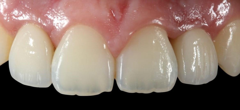 Aspecto inicial intra oral