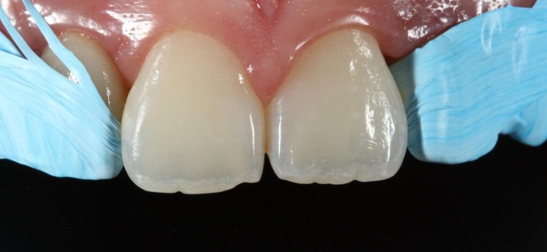 Proteção dos dentes vizinhos com Teflon - Isotape (TDV)