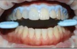 utilizamos também óculos de proteção e protetor lingual para a paciente.