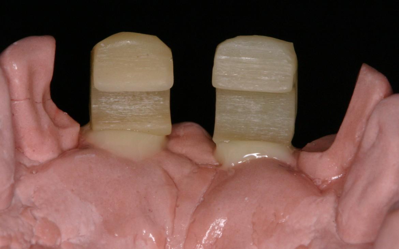 Fig.-15-Po¦énticos-adaptados-ao-modelo-com-resina