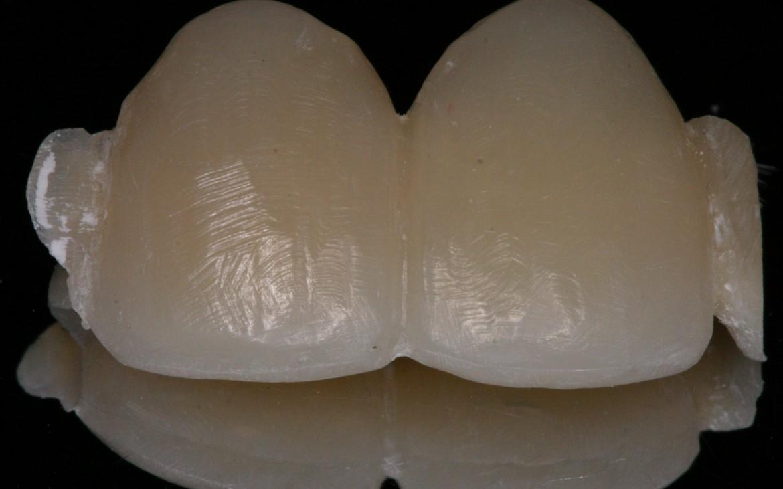 Fig.-20-Protese-Adesiva-finalizada