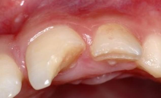 Vista inicial do caso, detalhando a fratura do dente 21