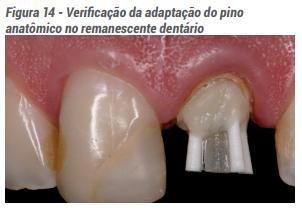 Verificação da adaptação do pino anatômico no remanescente dentário