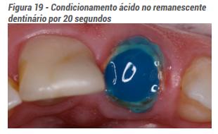 Condicionamento ácido no remanescente dentinário por 20 segundos