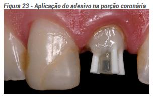 Aplicações do adesivo na porção coronária