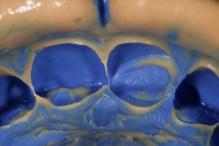 Visualização aproximada do molde feito com silicone de adição – Virtual – Ivoclar Vivadent.