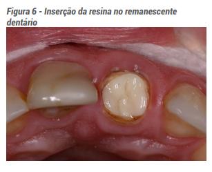 Figura 6 - Inserção da resina no remanescente dentário