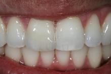 Prova do fragmento cerâmico com o cimento Variolink Veneer try-in cor high value +1. Nesta prova podemos observar na cerâmica as mesmas características ópticas do dente natural adjacente