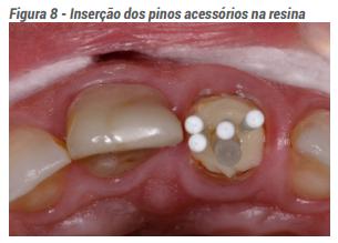 Figura 8 - Inserção dos pinos acessórios na resina