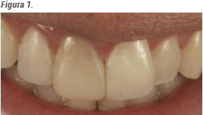 estado inicial do sorriso do paciente
