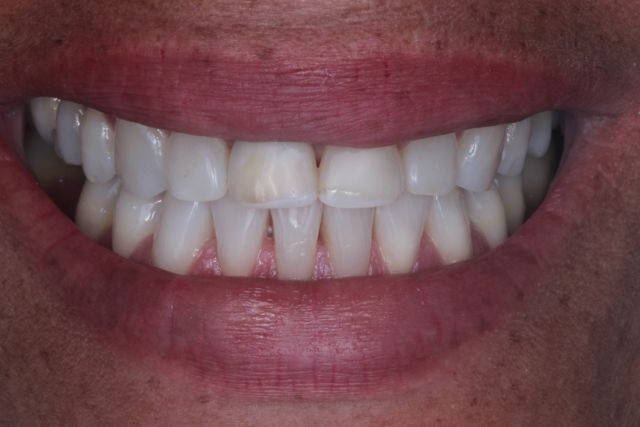 Fig. 1 - Sorriso Inicial