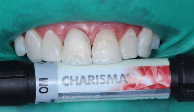 Fig. 12- resina de dentina OM