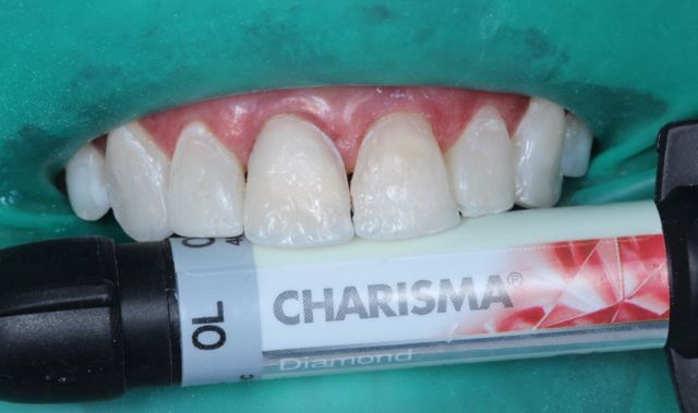 Fig. 13- resina de dentina OL