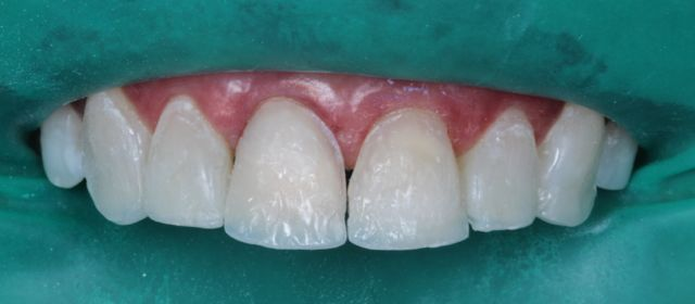 Fig. 14 - Reconstrução dentinária