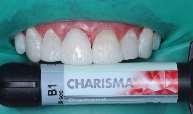 Fig. 15- resina de esmalte B1