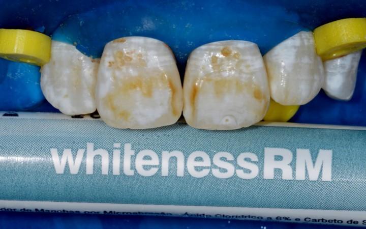 O tratamento foi iniciado isolando somente os dentes incisivos superiores para que a paciente experimentasse os resultados da técnica de microabrasão