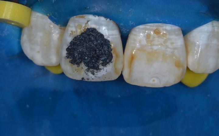 fricção suave com o auxílio de taça de borracha e contra-ângulo em baixa rotação durante 5 a 10 segundos, como pode ser observado no dente 11