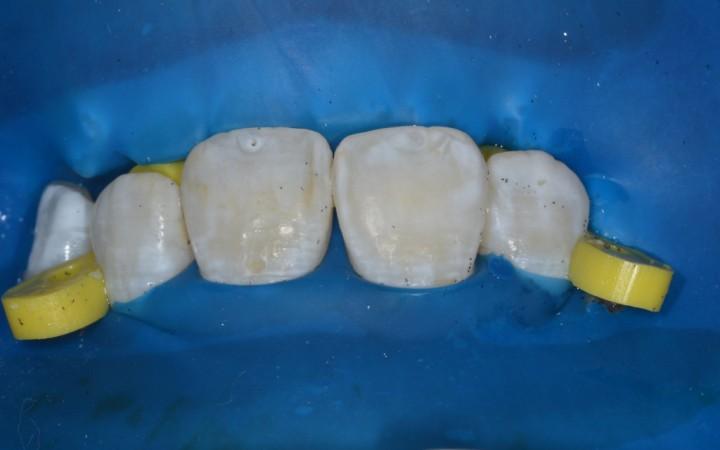 Após essa primeira sessão clínica, já pudemos reclassificar o grau de severidade das manchas brancas na classificação TF de 5 para 3.