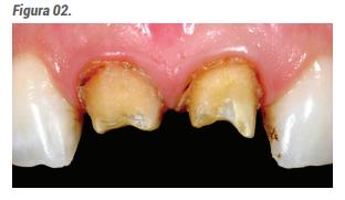 Imediatamente após a remoção das coroas, iniciase o preparo do remanescente dental.