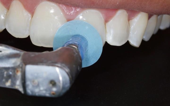 acabamento e polimento do esmalte com discos abrasivos Diamond Pro