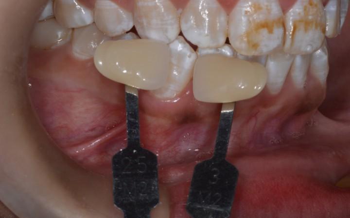 Tomou-se como referência as áreas dentárias com menor manchamento, encontrando a cor 3M2 nos caninos e pré molares superiores na escala VITA Bleachedguide 3D-MASTER