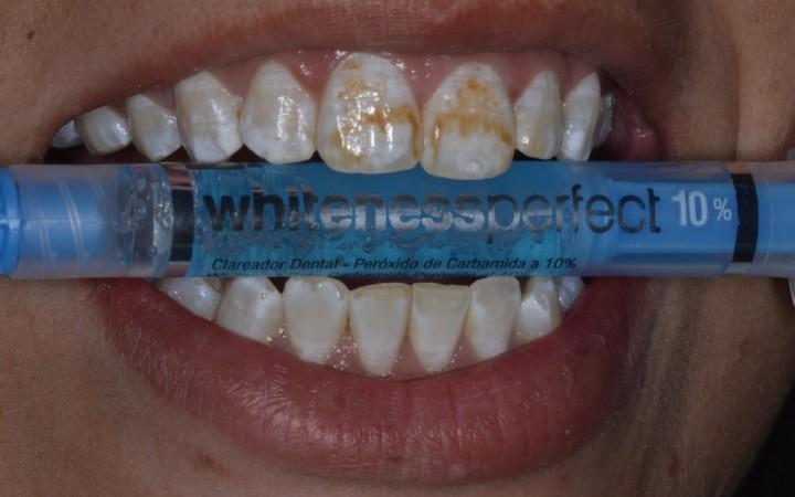 Foi utilizada uma seringa de Whiteness Perfect 10% com a intenção de diminuir o contraste entre a cor do substrato dentário e das manchas brancas