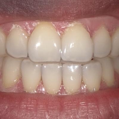 Clareamento Dental Sem Relato De Sensibilidade Surya Dental