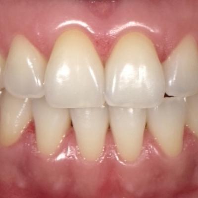 Clareamento dental sem relato de sensibilidade