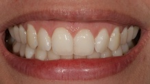 Situação inicial do caso demonstrando a movimentação do dente 21 para palatino