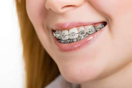 Aparelho ortodôntico pode deixar os dentes moles
